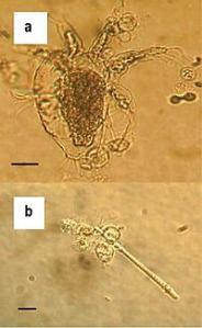 Batrachochytrium dendrobatidis